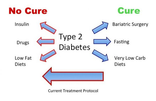 Diabetes: Type 2