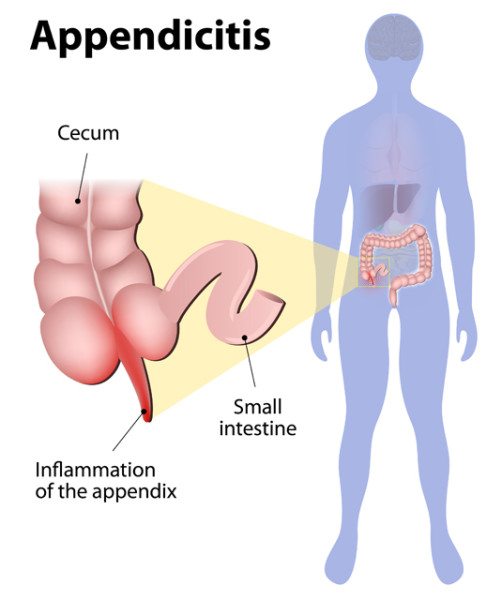 Appendicitis during pregnancy