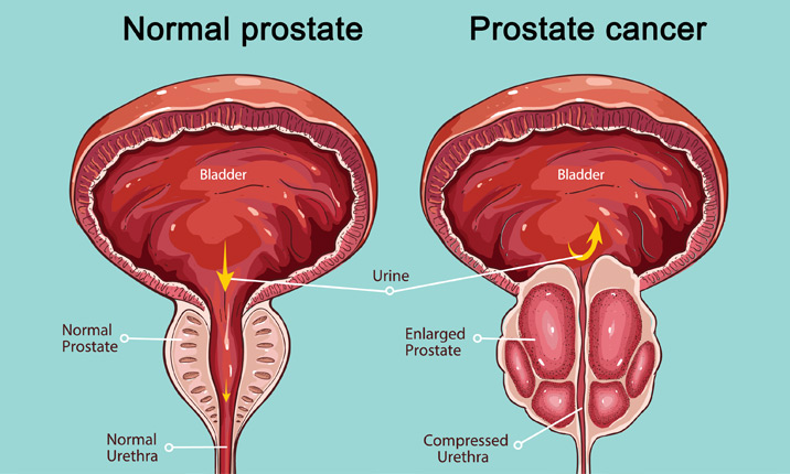 Prostate cancer treatment: