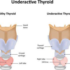 Underactive thyroid disease: